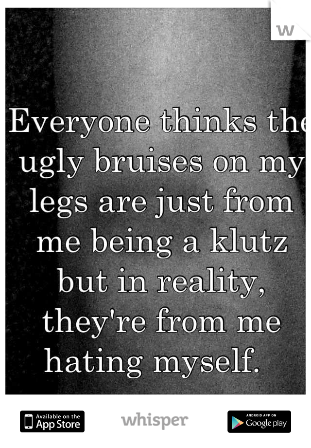 Everyone thinks the ugly bruises on my legs are just from me being a klutz but in reality, they're from me hating myself.
