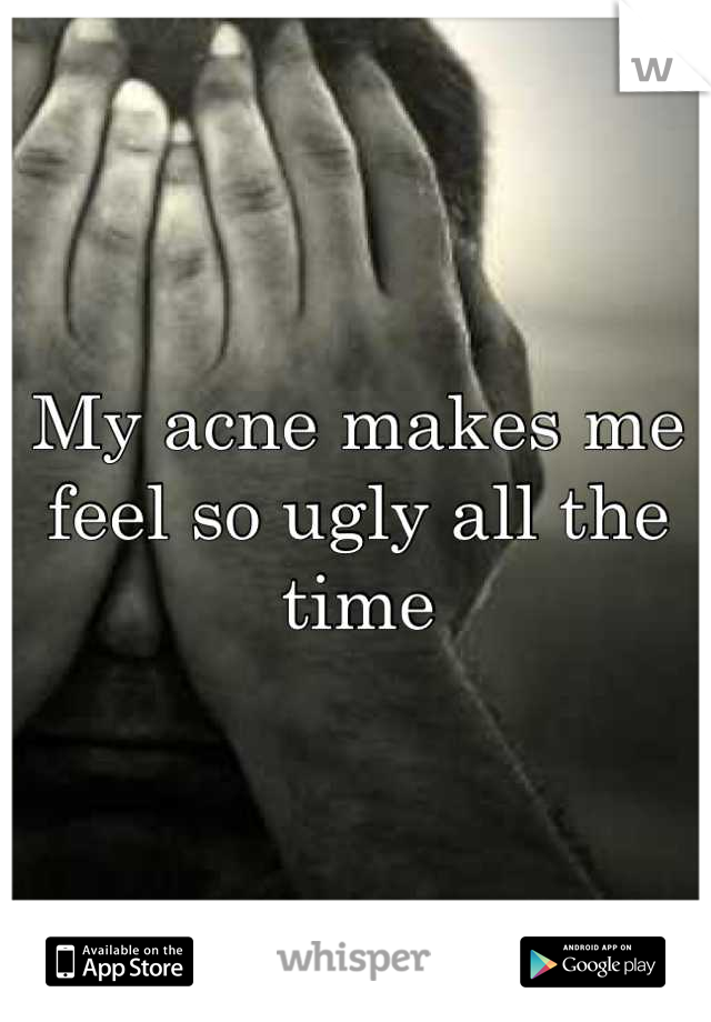 My acne makes me feel so ugly all the time