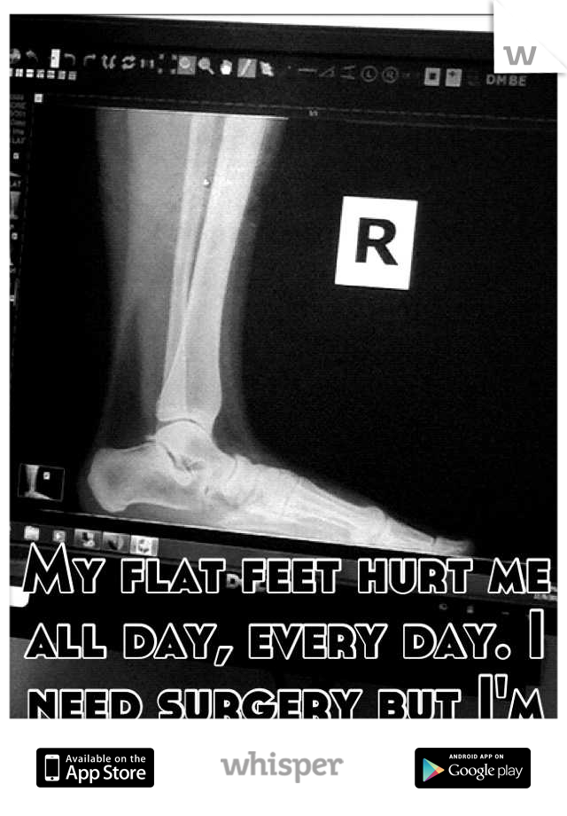 My flat feet hurt me  all day, every day. I need surgery but I'm so terrified.