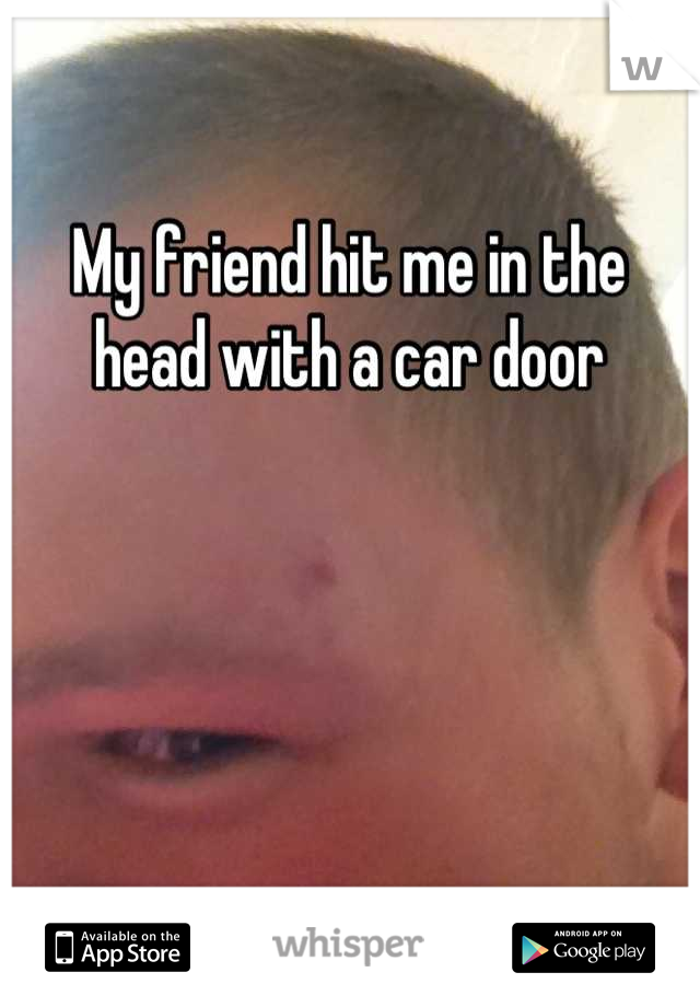 My friend hit me in the head with a car door