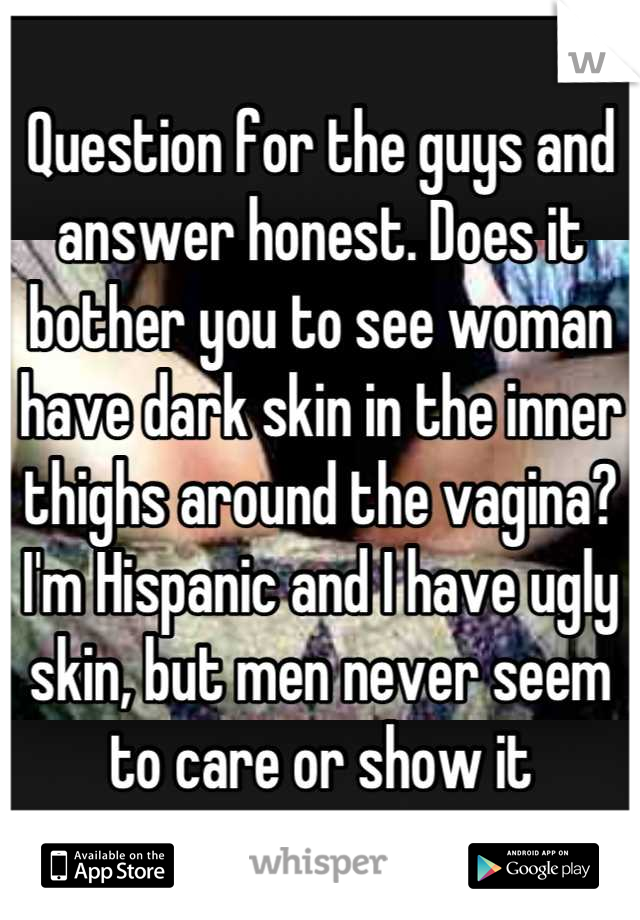 Question for the guys and answer honest. Does it bother you to see woman have dark skin in the inner thighs around the vagina? I'm Hispanic and I have ugly skin, but men never seem to care or show it