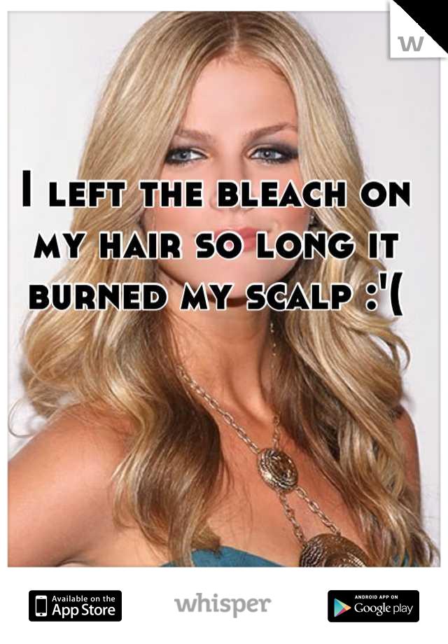 I left the bleach on my hair so long it burned my scalp :'(