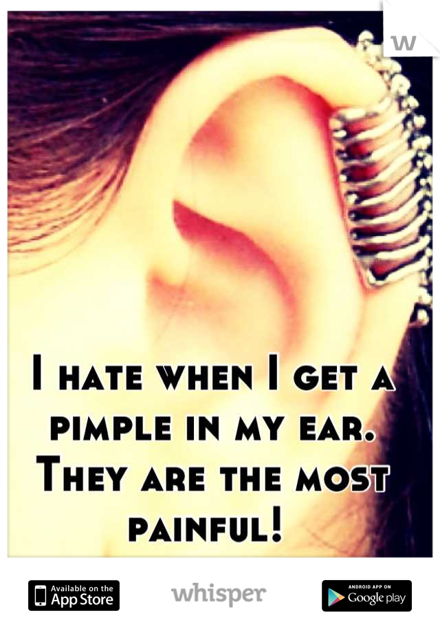 I hate when I get a pimple in my ear. They are the most painful!