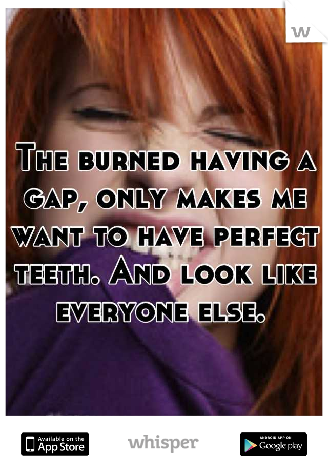 The burned having a gap, only makes me want to have perfect teeth. And look like everyone else.