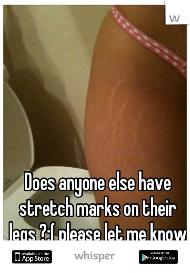 Does anyone else have stretch marks on their legs ?:( please let me know I'm not alone.. (Not my pic)