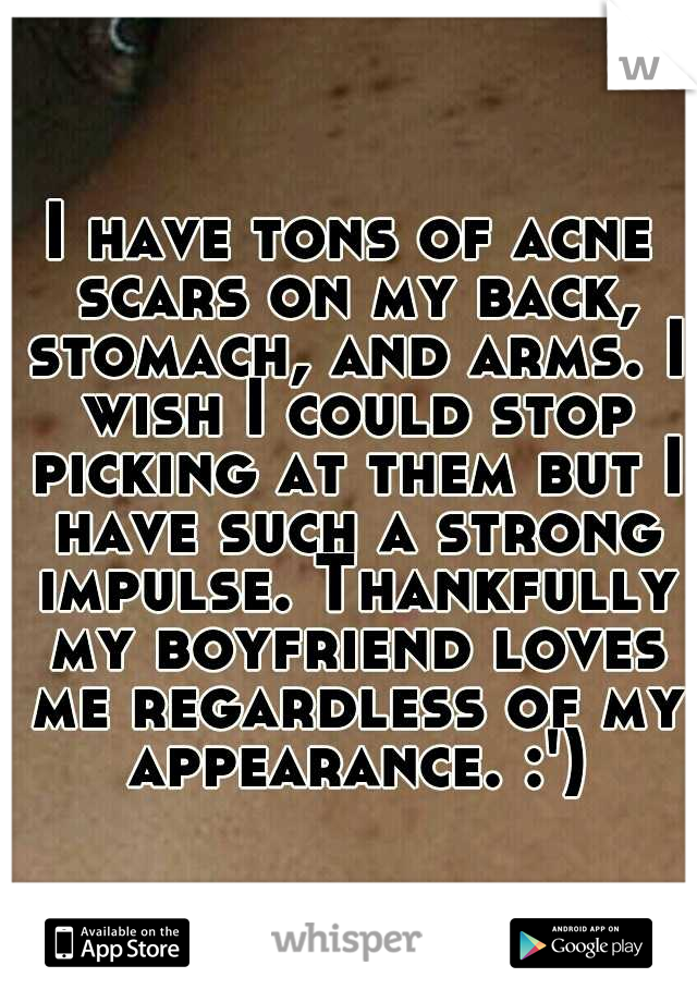 I have tons of acne scars on my back, stomach, and arms. I wish I could stop picking at them but I have such a strong impulse. Thankfully my boyfriend loves me regardless of my appearance. :')
