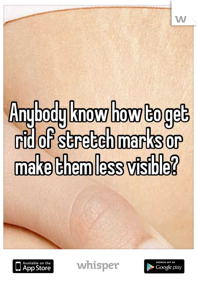 Anybody know how to get rid of stretch marks or make them less visible?