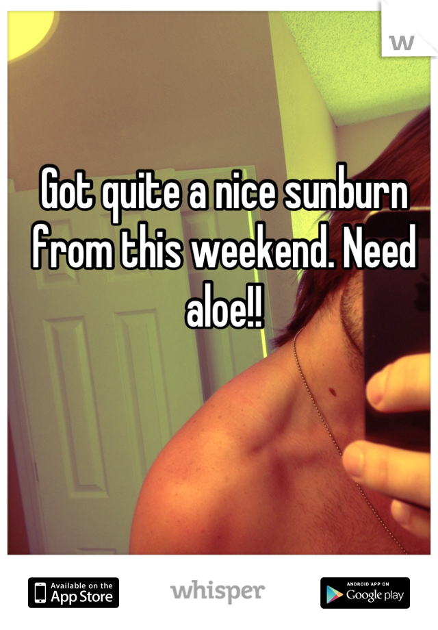 Got quite a nice sunburn from this weekend. Need aloe!!