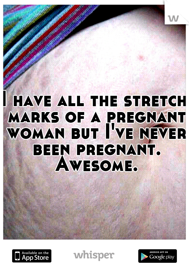 I have all the stretch marks of a pregnant woman but I've never been pregnant. Awesome.