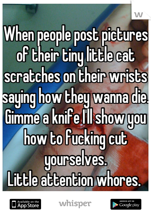 When people post pictures of their tiny little cat scratches on their wrists saying how they wanna die.  Gimme a knife I'll show you how to fucking cut yourselves.  Little attention whores.