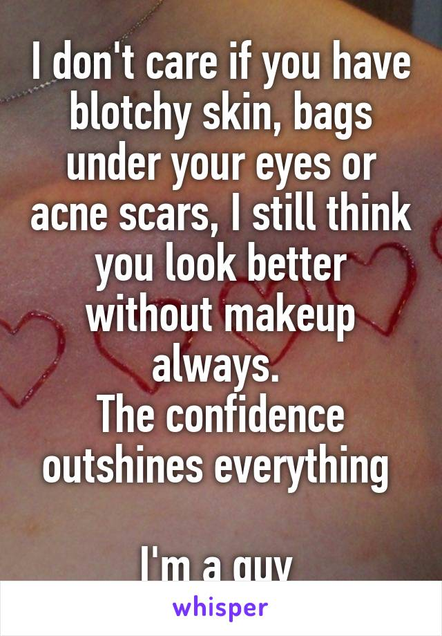 I don't care if you have blotchy skin, bags under your eyes or acne scars, I still think you look better without makeup always.  The confidence outshines everything   I'm a guy