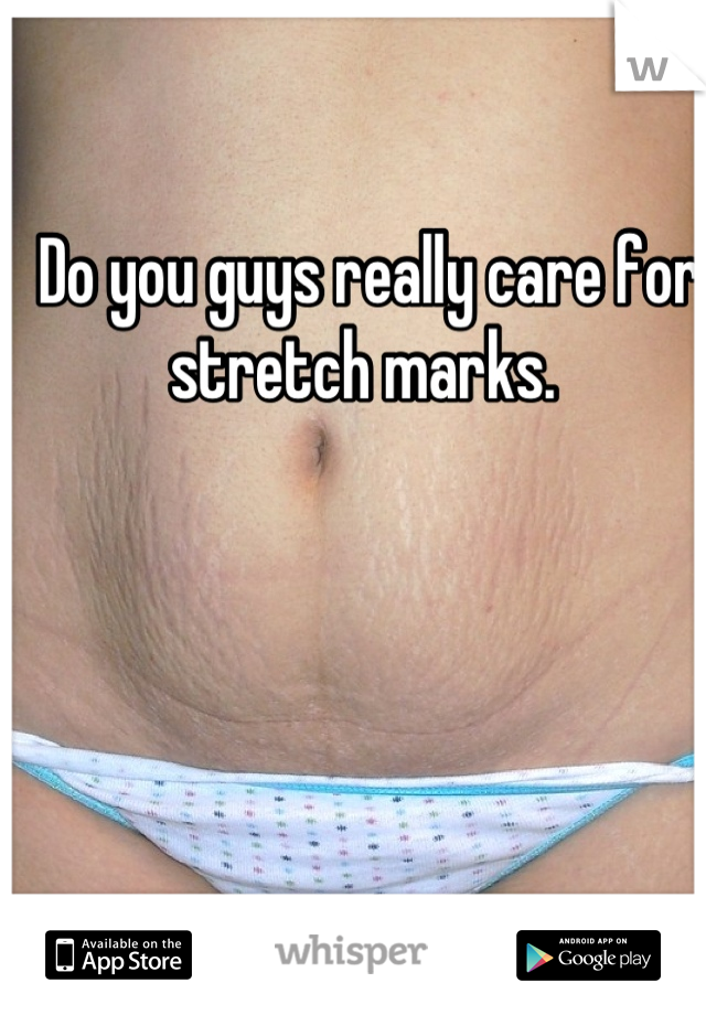 Do you guys really care for stretch marks.