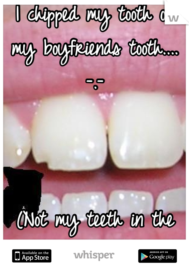 I chipped my tooth on my boyfriends tooth.... -.-    (Not my teeth in the pic)