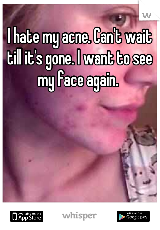 I hate my acne. Can't wait till it's gone. I want to see my face again.