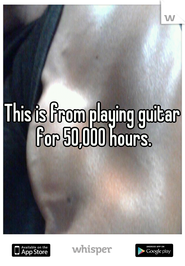 This is from playing guitar for 50,000 hours.