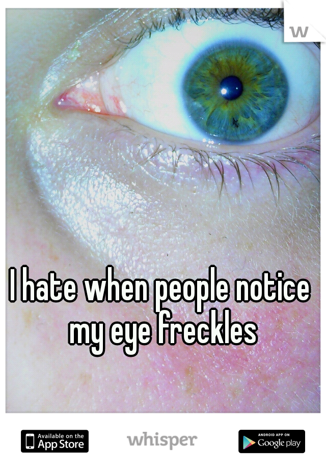 I hate when people notice my eye freckles
