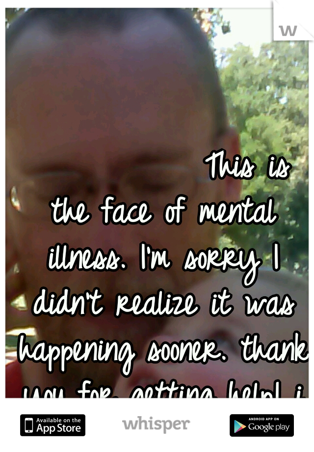 This is the face of mental illness. I'm sorry I didn't realize it was happening sooner. thank you for getting help! i love you.
