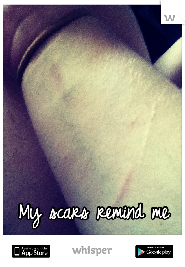 My scars remind me that the past is real.