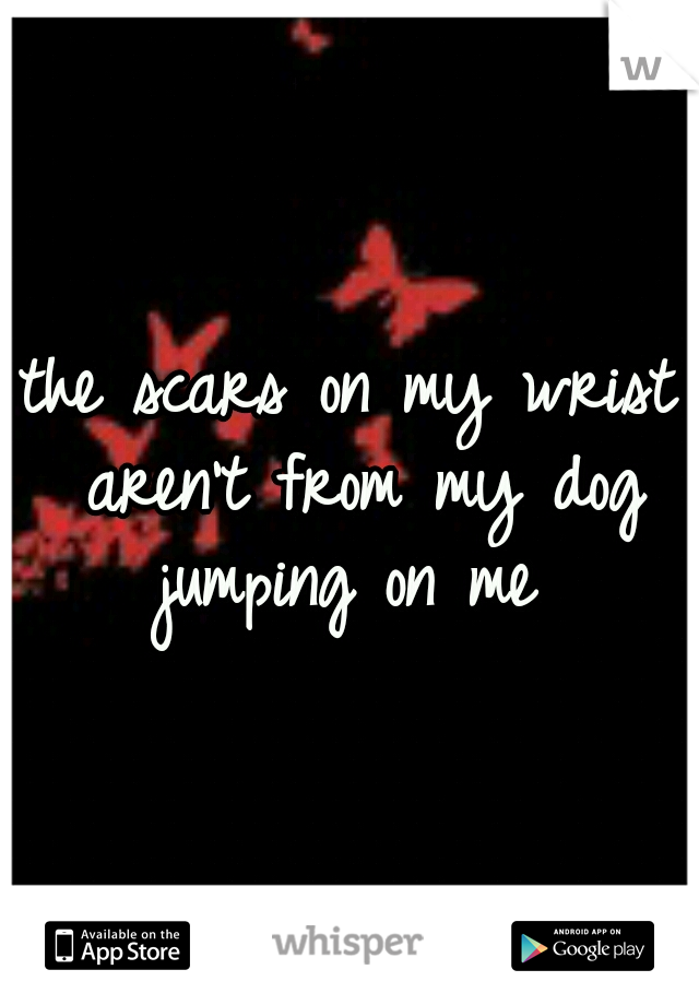 the scars on my wrist aren't from my dog jumping on me
