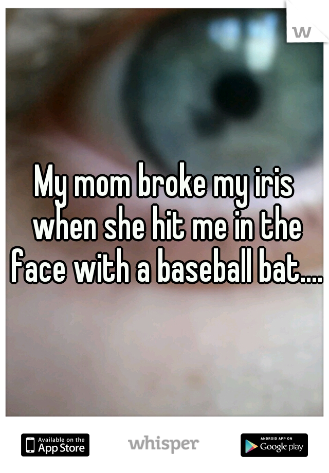 My mom broke my iris when she hit me in the face with a baseball bat....