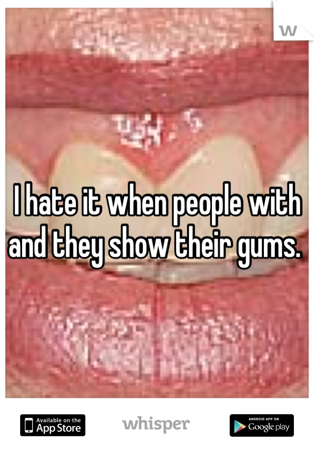 I hate it when people with and they show their gums.