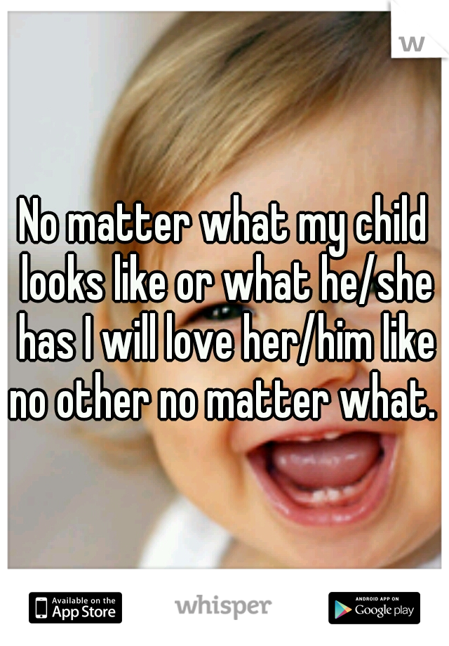 No matter what my child looks like or what he/she has I will love her/him like no other no matter what.