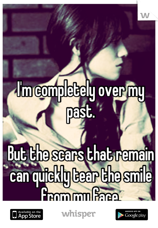 I'm completely over my past.   But the scars that remain can quickly tear the smile from my face.