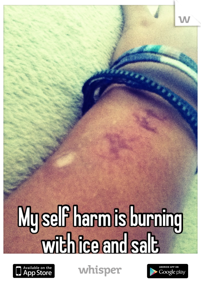 My self harm is burning  with ice and salt I wanna burn again today