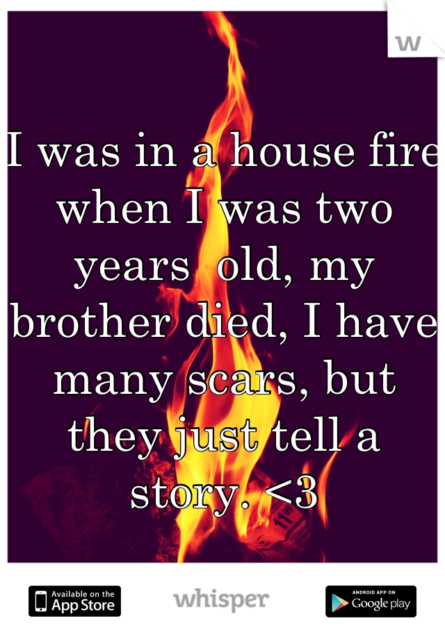 I was in a house fire when I was two years  old, my brother died, I have many scars, but they just tell a story. <3
