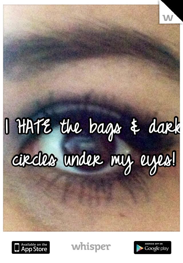 I HATE the bags & dark circles under my eyes!