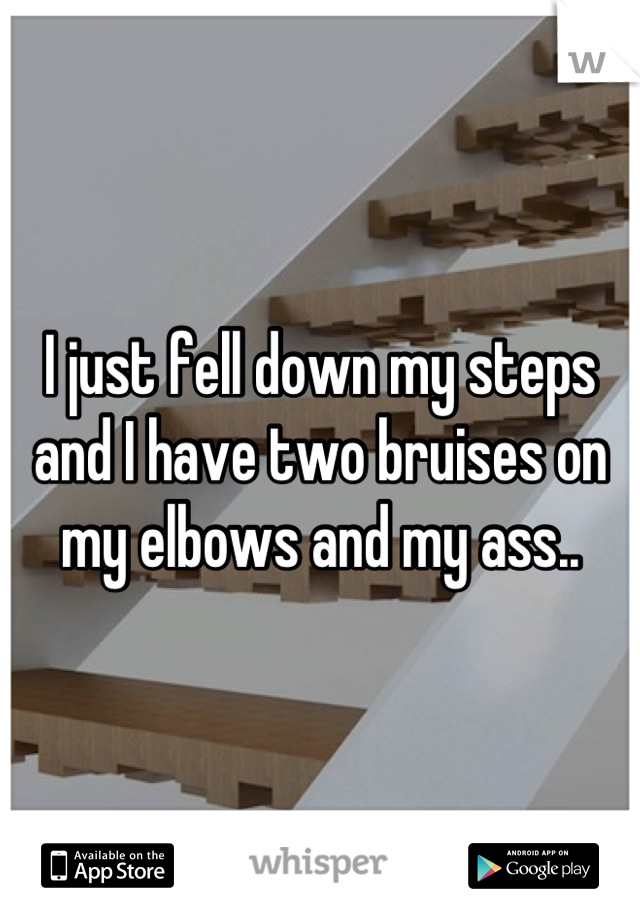 I just fell down my steps and I have two bruises on my elbows and my ass..