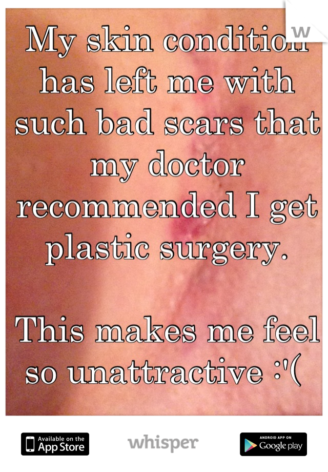 My skin condition has left me with such bad scars that my doctor recommended I get plastic surgery.   This makes me feel so unattractive :'(