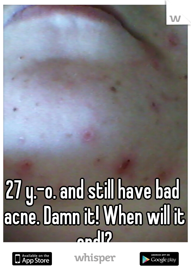 27 y.-o. and still have bad acne. Damn it! When will it end!?