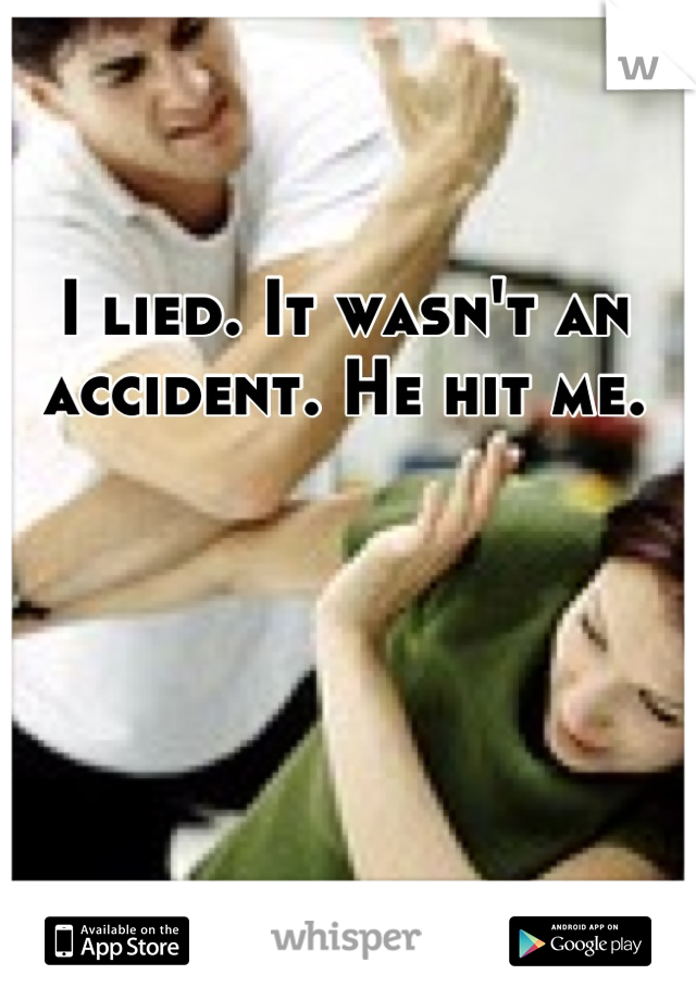 I lied. It wasn't an accident. He hit me.