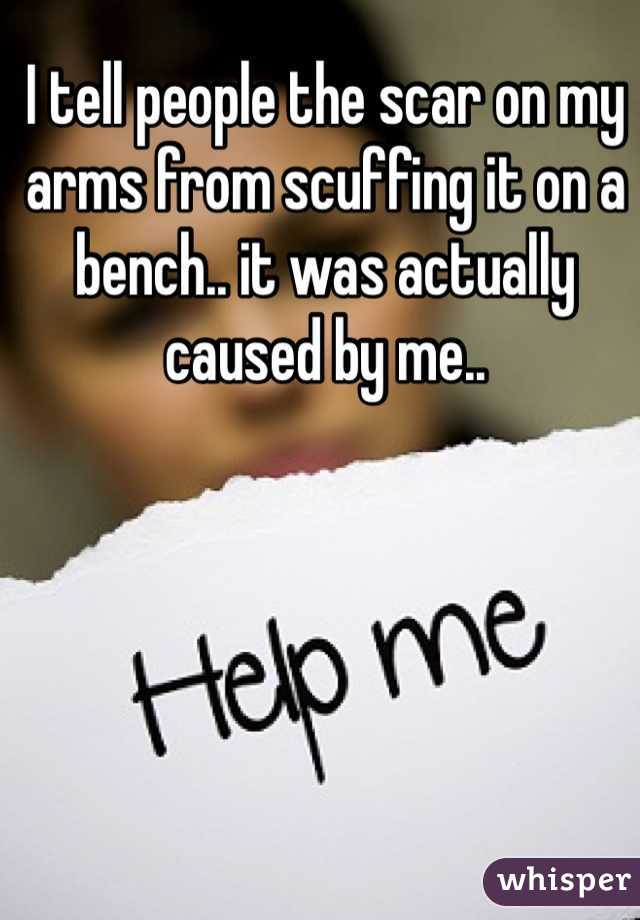 I tell people the scar on my arms from scuffing it on a bench.. it was actually caused by me..