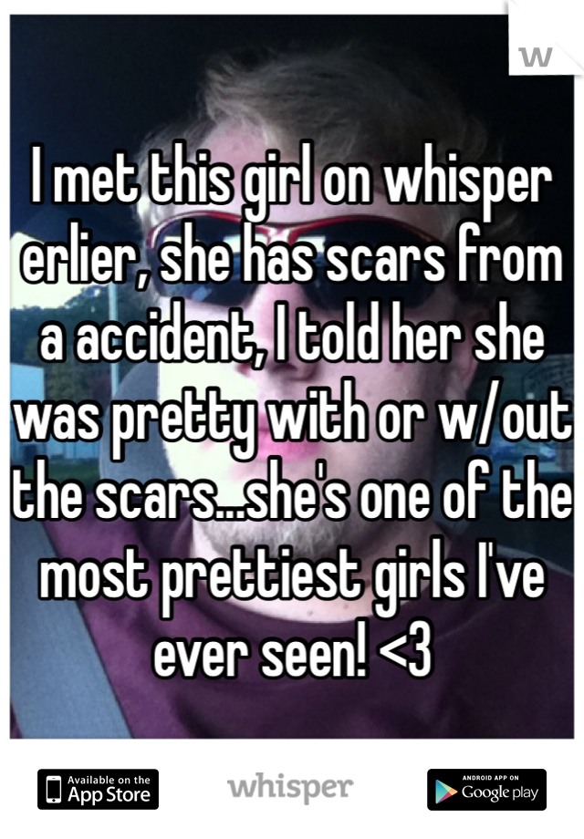 I met this girl on whisper erlier, she has scars from a accident, I told her she was pretty with or w/out the scars...she's one of the most prettiest girls I've ever seen! <3