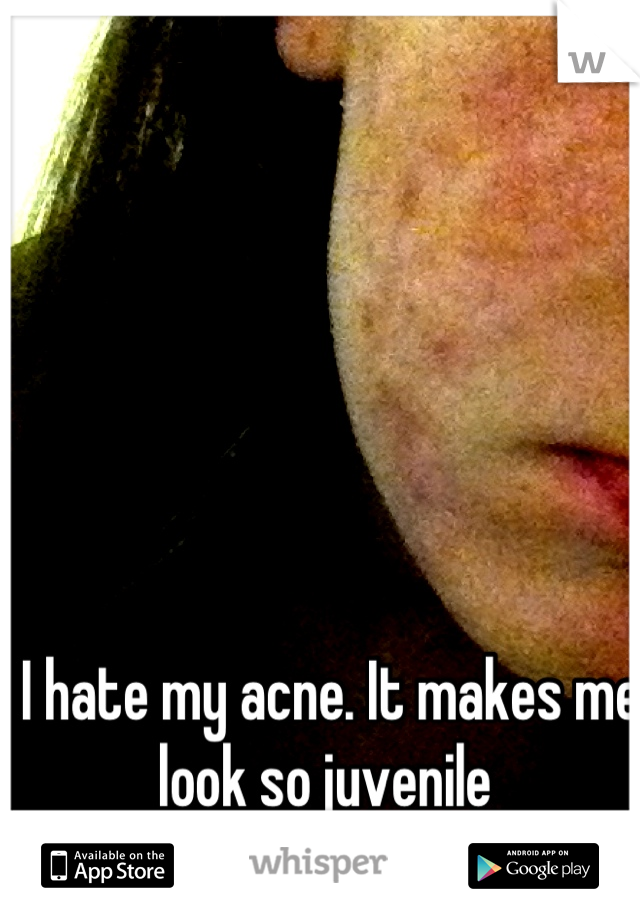 I hate my acne. It makes me look so juvenile