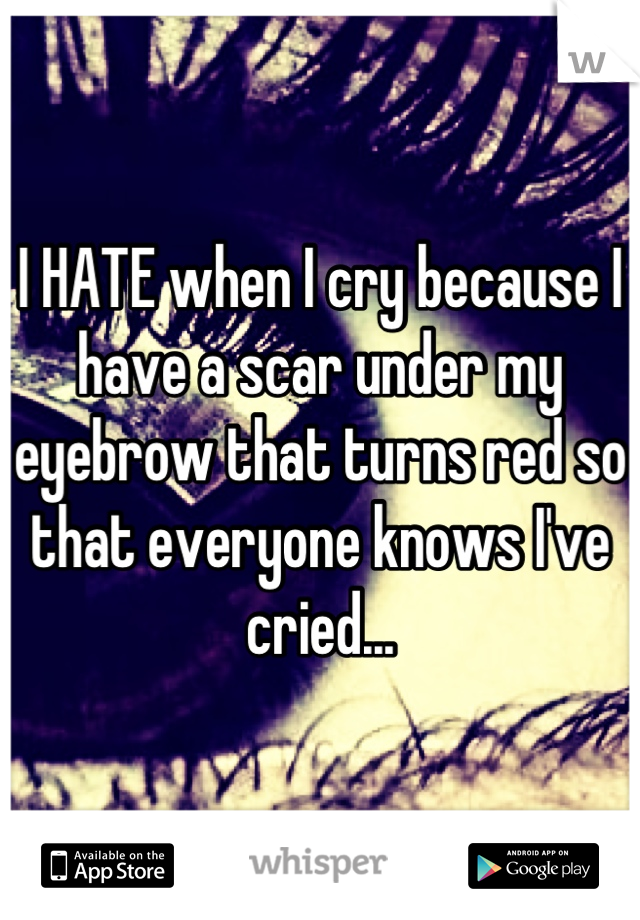 I HATE when I cry because I have a scar under my eyebrow that turns red so that everyone knows I've cried...