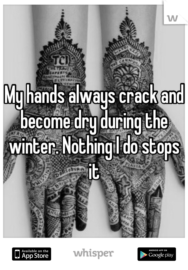 My hands always crack and become dry during the winter. Nothing I do stops it