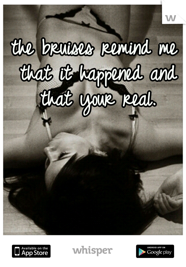 the bruises remind me that it happened and that your real.