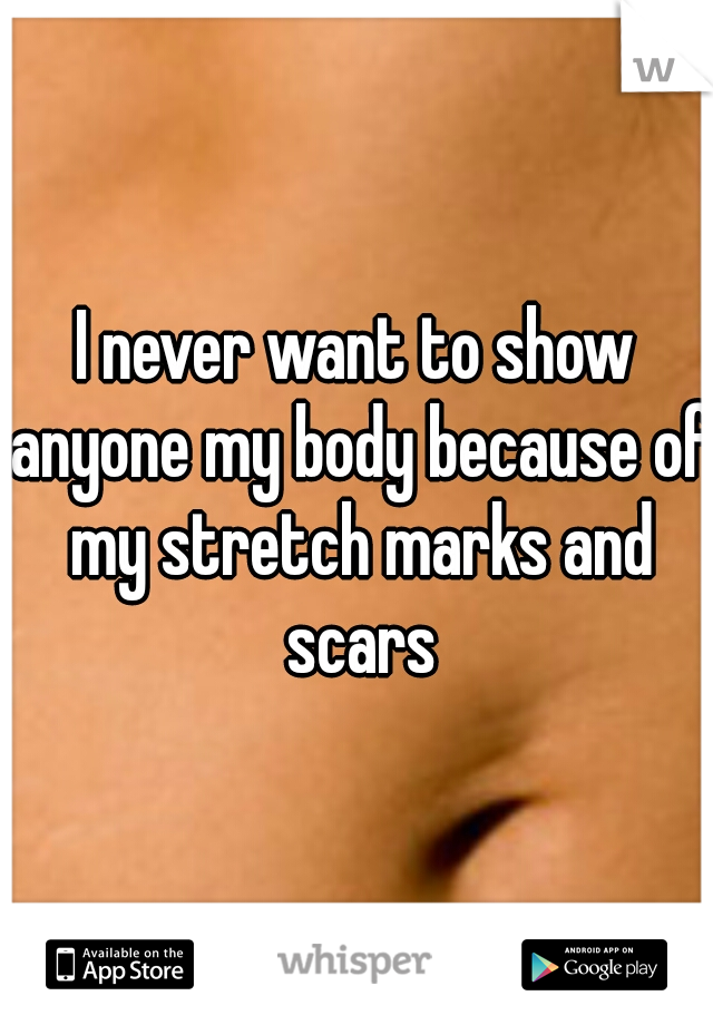 I never want to show anyone my body because of my stretch marks and scars