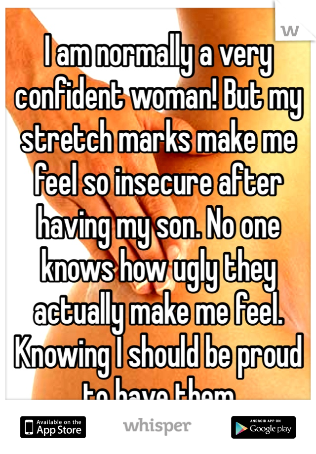 I am normally a very confident woman! But my stretch marks make me feel so insecure after having my son. No one knows how ugly they actually make me feel. Knowing I should be proud to have them