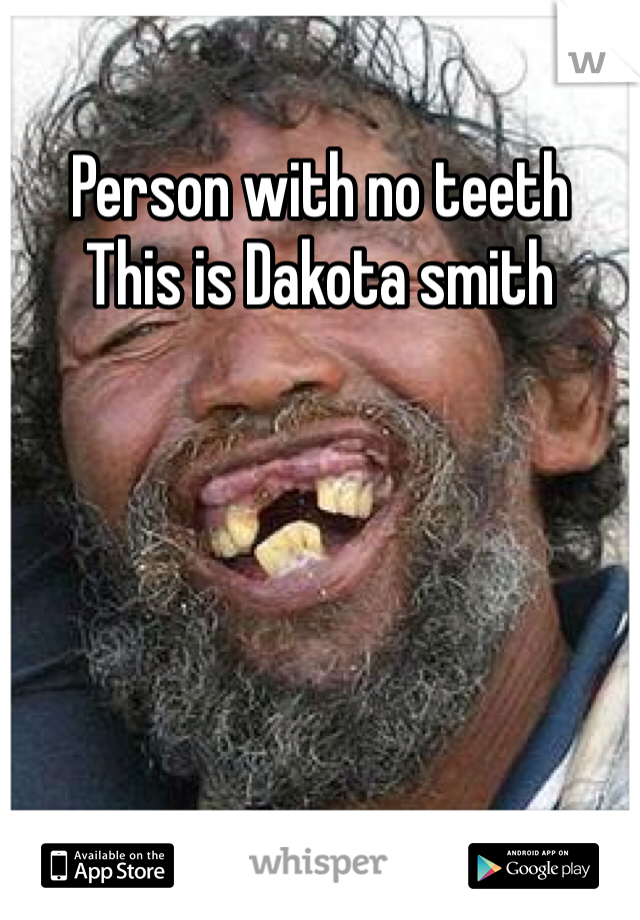 Person with no teeth This is Dakota smith