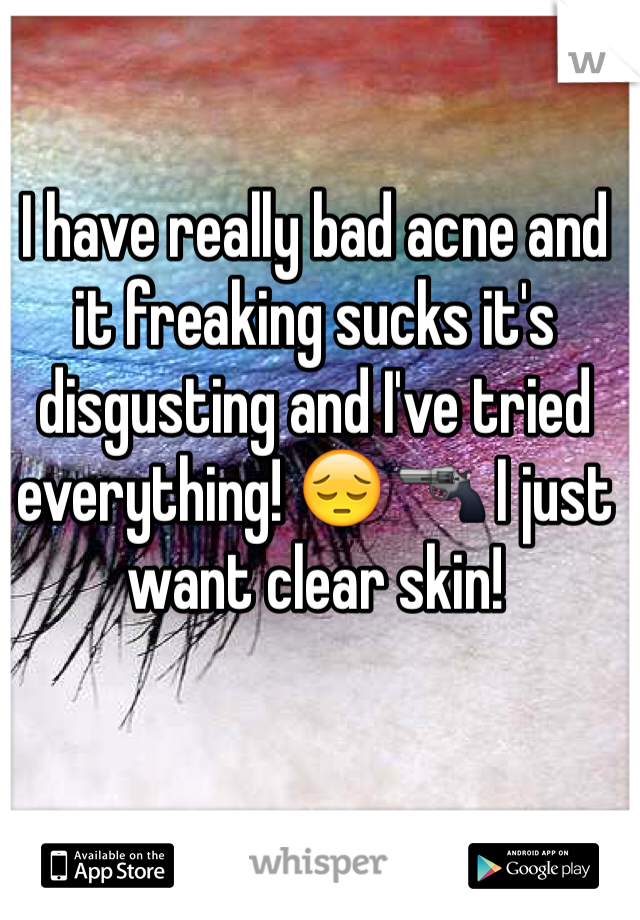 I have really bad acne and it freaking sucks it's disgusting and I've tried everything! 😔 🔫 I just want clear skin!