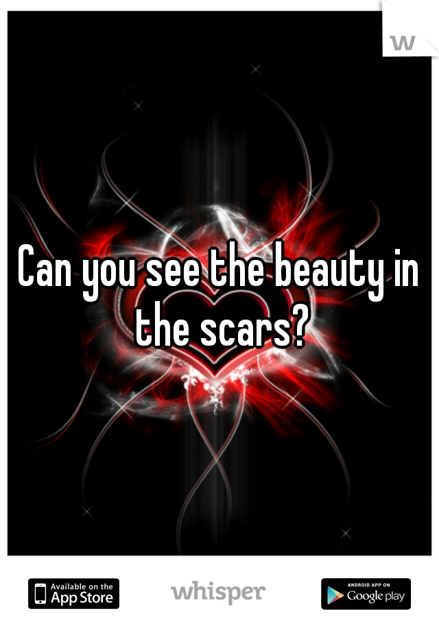 Can you see the beauty in the scars?