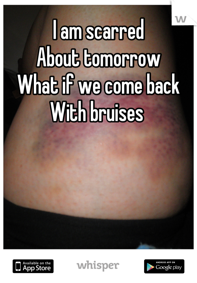 I am scarred  About tomorrow What if we come back  With bruises