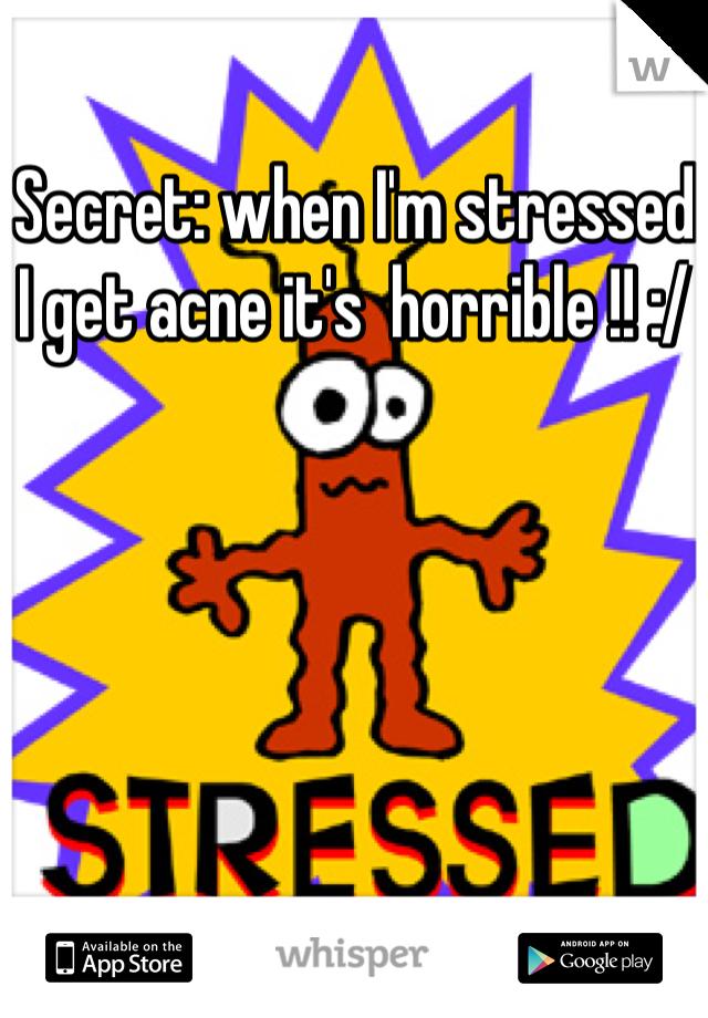 Secret: when I'm stressed I get acne it's  horrible !! :/