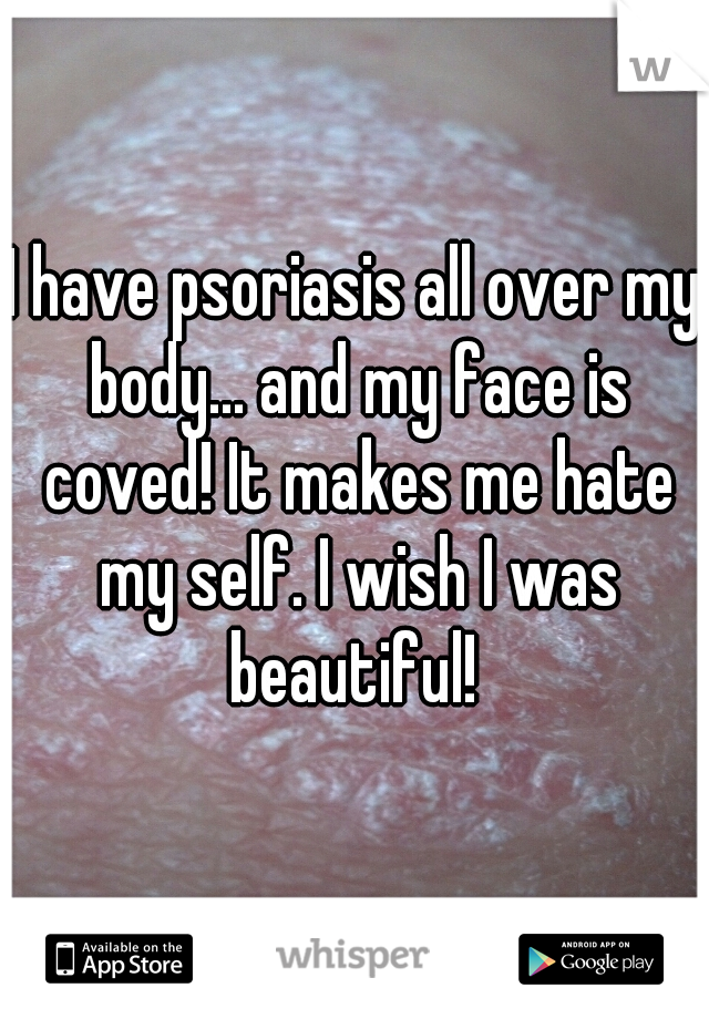 I have psoriasis all over my body... and my face is coved! It makes me hate my self. I wish I was beautiful!