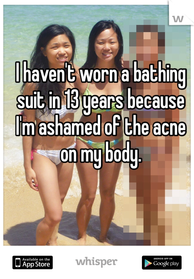 I haven't worn a bathing suit in 13 years because I'm ashamed of the acne on my body.