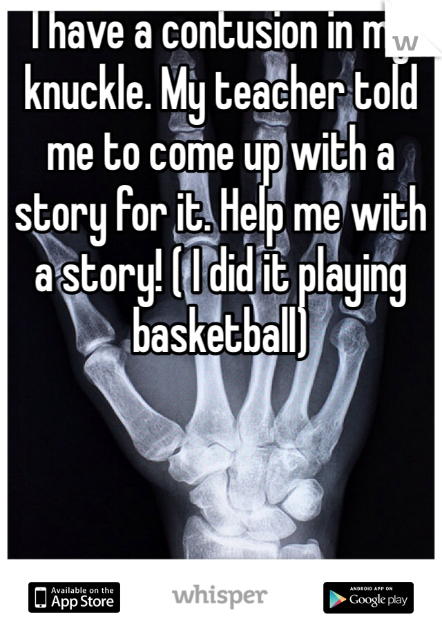 I have a contusion in my knuckle. My teacher told me to come up with a story for it. Help me with a story! ( I did it playing basketball)